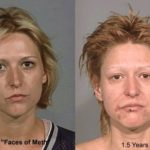 UC Irvine and Italian Institute Research Details at Cellular Level the Ravages of Meth on Faces