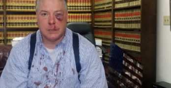 Jury Pummels Police Lawsuit Specialist and His Defense Lawyer Client